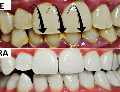 THE EFFECT OF DENTAL CALCULUS ON ORAL HEALTH